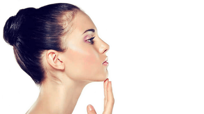 rhinoplasty in brisbane